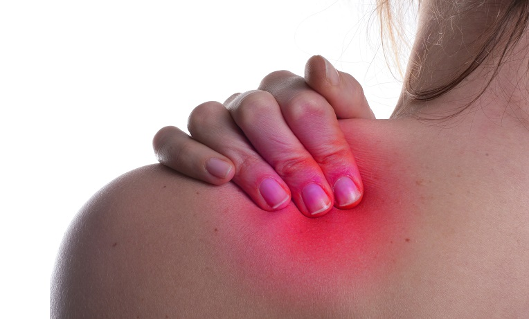 Woman showing back and putting right hand on top of left shoulder to represent shoulder pain.